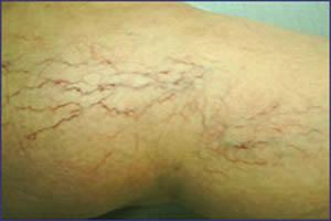 0047-clinica-bergmann-porto-alegre-microvarizes-varicoses-e-varizes-nas-pernas-1