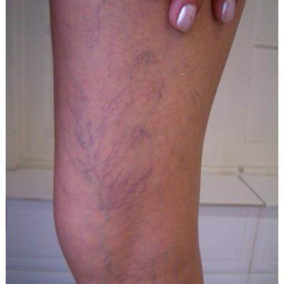 0047-clinica-bergmann-porto-alegre-microvarizes-varicoses-e-varizes-nas-pernas-2