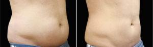 Antes e Depois Tratamento de Gordura Localizada
