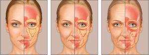 Rejuvenescimento Facial após Cirurgia Bariátrica ou Emagrecimento