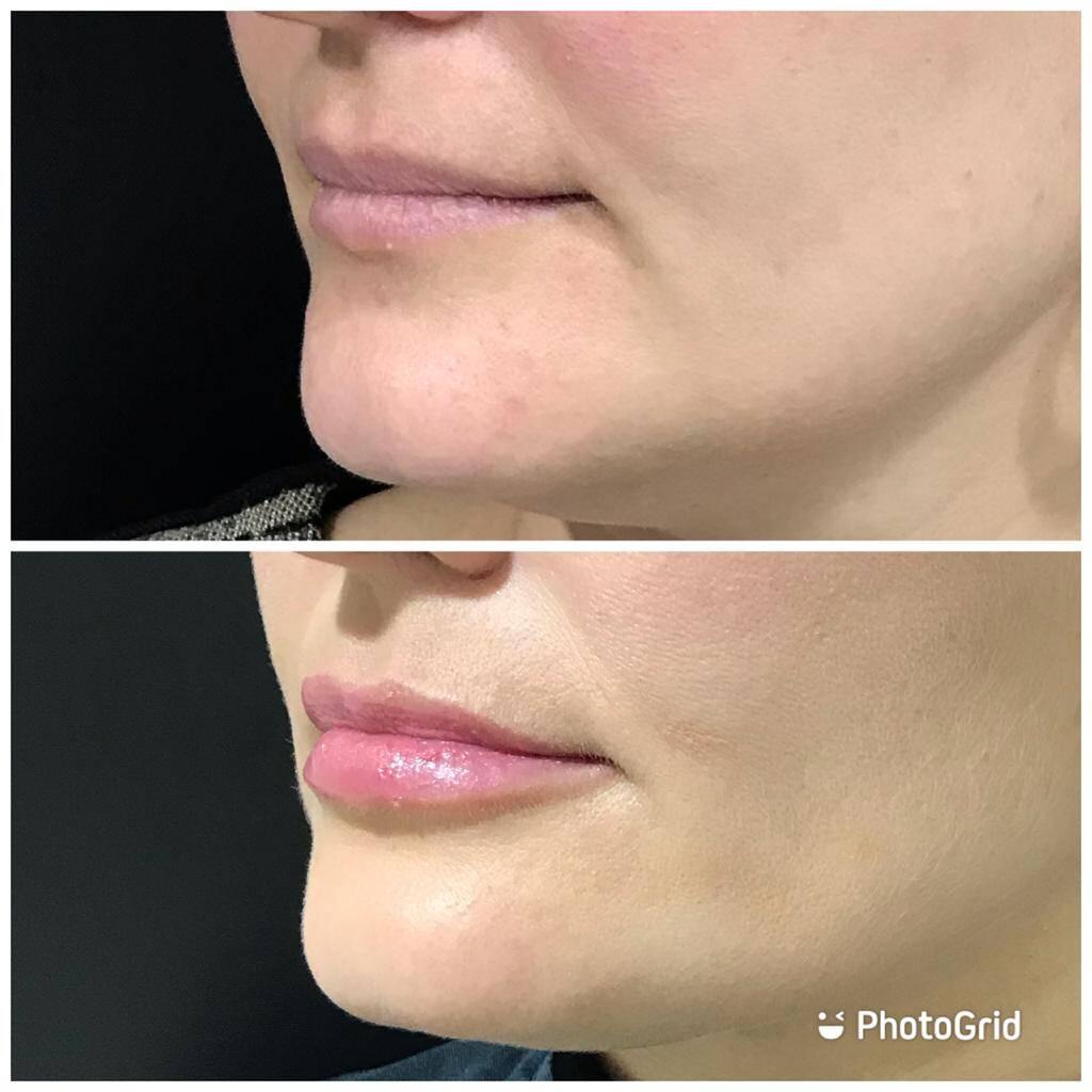 Aumento volume labial e contorno